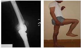 osteosarkom