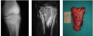 yüksek-dereceli-osteosarkom